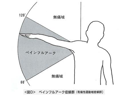 ペインフルアーク症候群(有痛性運動域症候群)