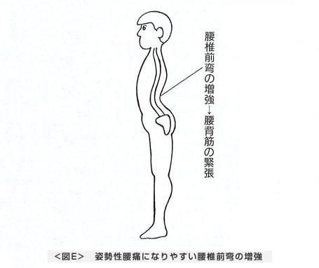 姿勢性腰痛になりやすい腰椎前弯の増強
